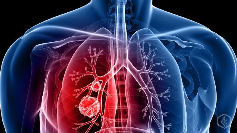 Image of Are E-cigs healthier than tobacco